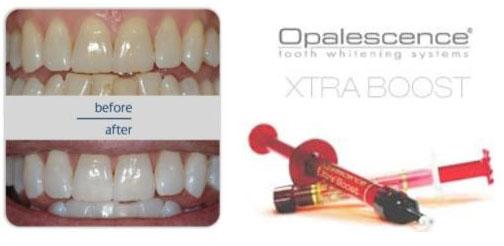 Cosmetic Aesthetic Dentist Mumbai
