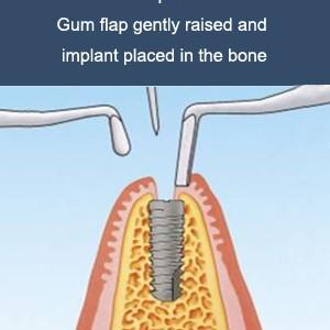 implant-work-1