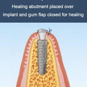 implant-work-2