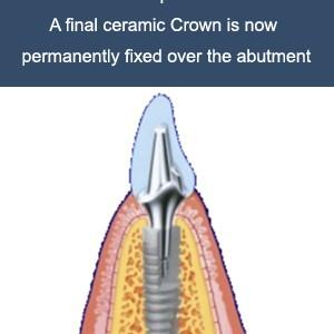 implant-work-4